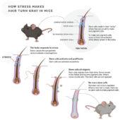 【関係ある?ない?】ストレスで髪が白くなる原因とは?ハーバードの科学者が発見